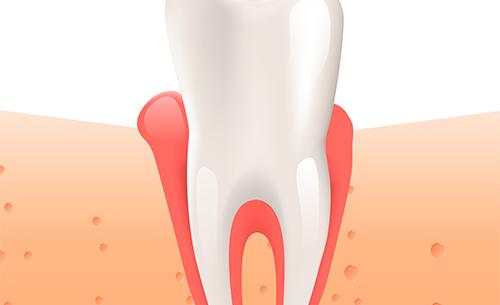 encias-y-problemas-cardiovasculares-clinica-dental-dentista-cartagena-encia-dolorida-www.dentalpenalver.com_