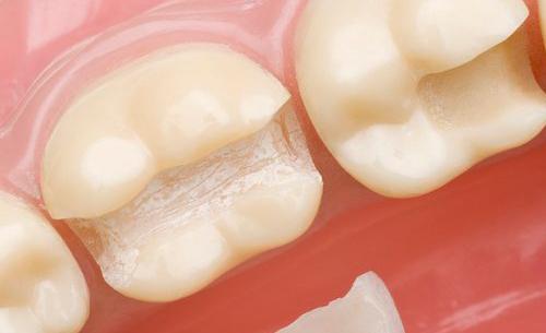 cambiar-empastes-grises-por-empastes-blanco-www.dentalpenalver.com