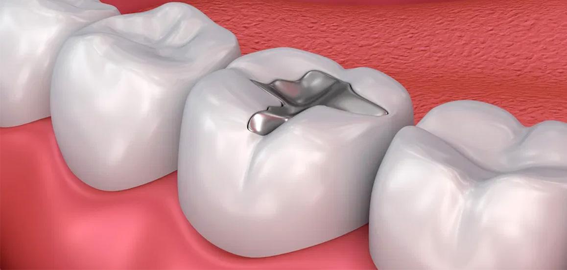 empastes-color-negro-clinica-dental-dentista-cartagena-www.dentalpenalver.com_.jpg