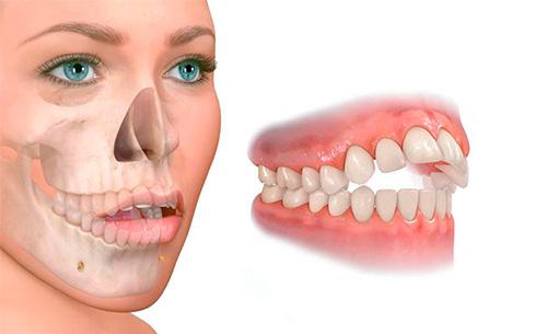 deglucion-atipica-clinica-dental-dentista-cartagena-www.dentalpenalver.com