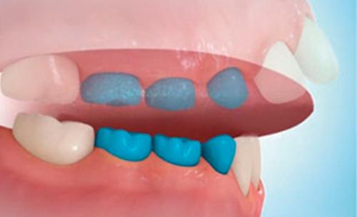 deglucion-como-detectarla-clinica-dental-dentista-cartagena-www.dentalpenalver.com