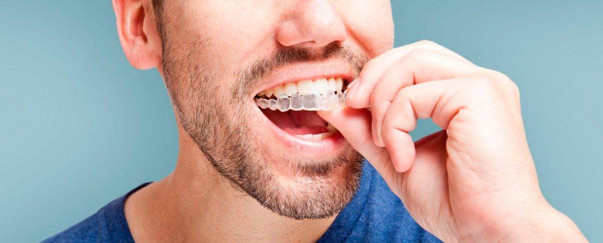 que-es-invisalign-noticia-post-clinica-dental-cartagena-www.dentalpenalver.com_-1-1200x483.jpg